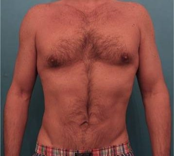male-liposuction-1-after-1