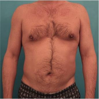 male-liposuction-1-before-1