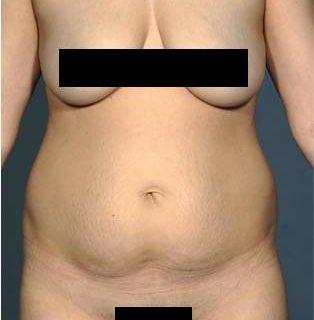 tummy-tuck-1-before-1