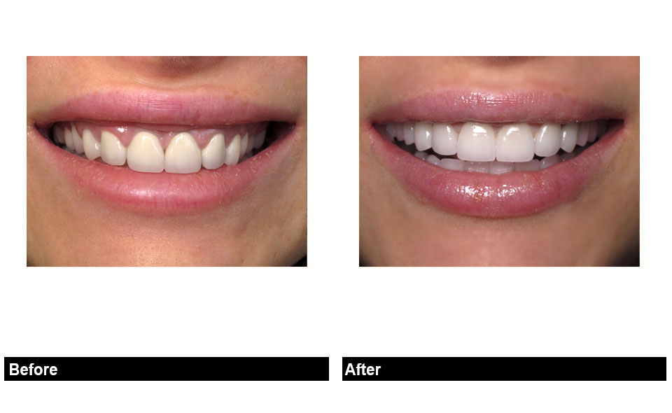 With So Many Diffe Cosmetic Dental Treatments Options To Improve And Enhance Your Smile Porcelain Veneers Are Widely Considered Be The Best Possible