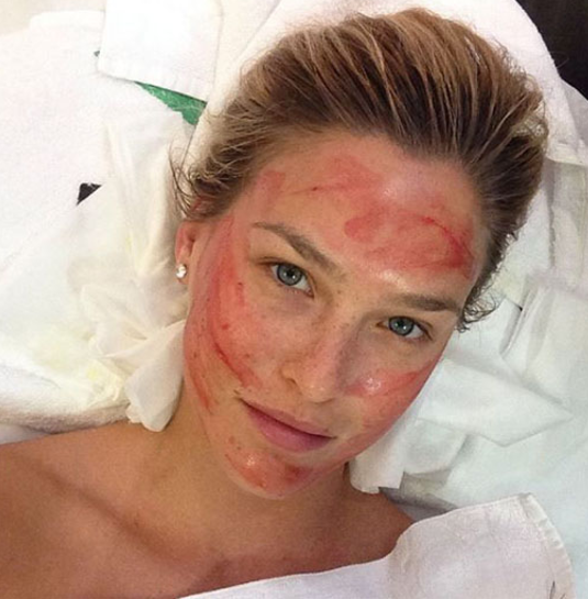 Model Bar Rafaeli during microneedling./Instagram