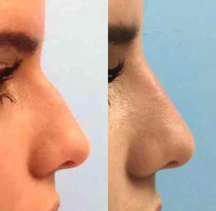 The Non Surgical Nose Job
