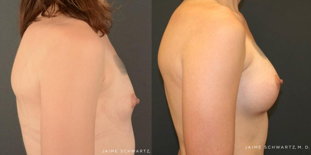 Transgender top surgery is very similar to a traditional female breast  augmentation.