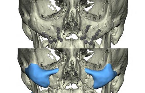 orthognathic-surgery-4