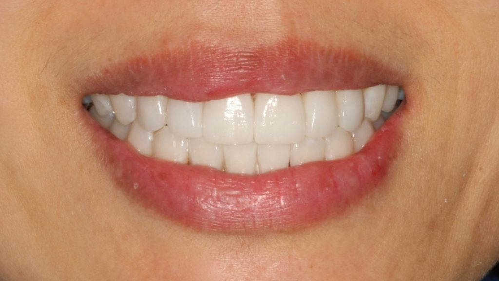 perfect smile veneers санкт петербург