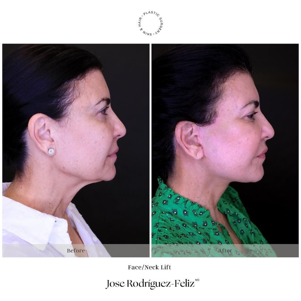 Dr. Rodríguez-Feliz