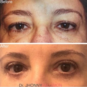 55-year-old patient before and three months after upper and lower blepharoplasty.