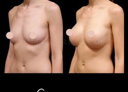 Breast Aug case 11