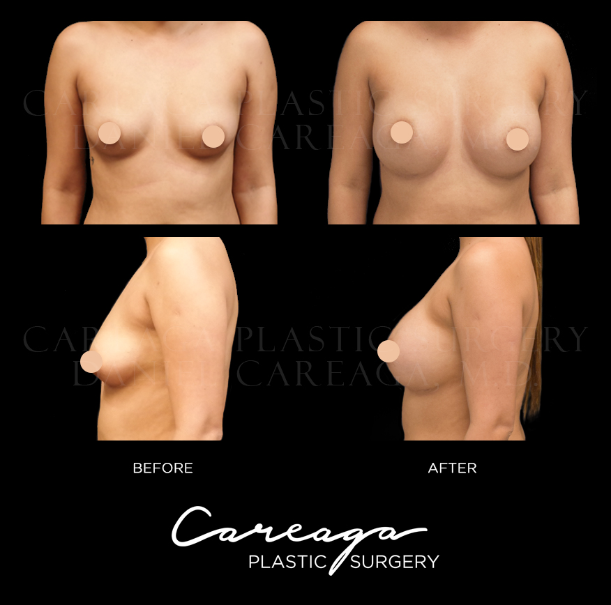 Breast Aug case 14