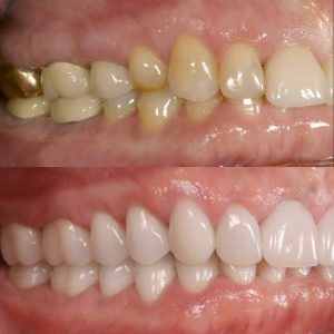 Full-mouth rehab with new veneers and all-ceramic crowns.