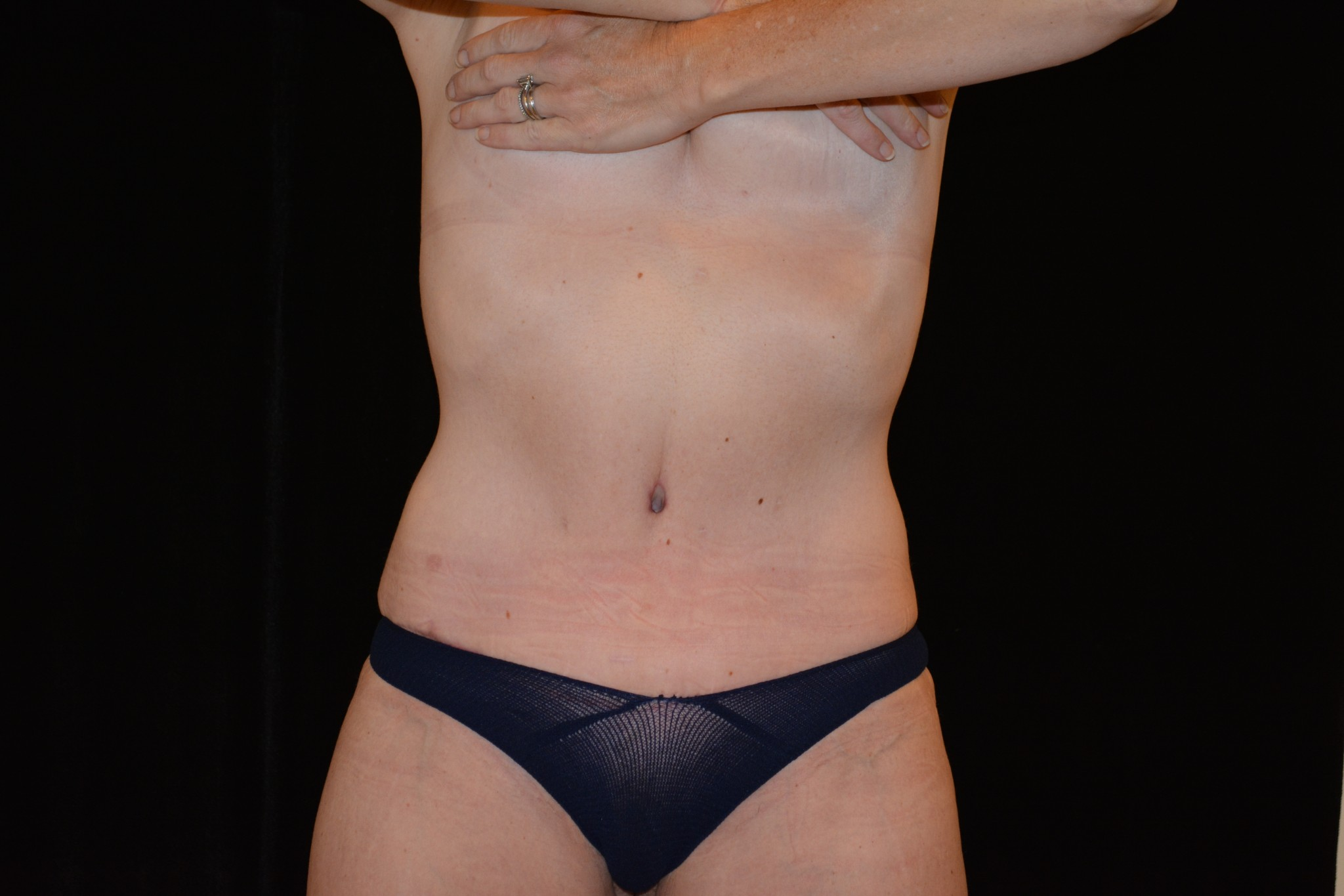 JL3 Months Post Abdominoplasty ft 7