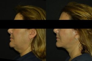 4 Effective Ways To Fight Neck Aging
