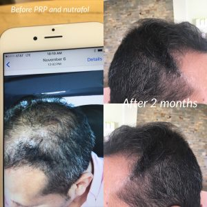 Two months after platelet-rich plasma and taking Nutrafol.