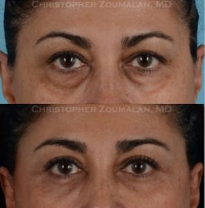 Before and after upper and lower blepharoplasty, microneedling to tighten lower eyelid skin and an endoscopic brow lift.