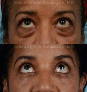 Before and after upper and lower blepharoplasty.