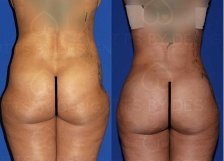 Butt 4