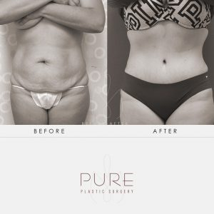 Dr Earle2-26-Abdominoplasty-Tummy-Tuck-Pure-Plastic-Surgery-Miami-Before-After