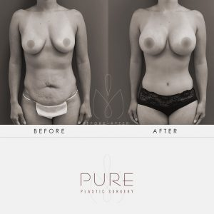 "Before and two months after a ""mommy makeover"" that included breast augmentation, a full tummy tuck and flank liposuction."