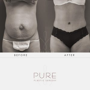 Dr Earle2-36-Abdominoplasty-Tummy-Tuck-Pure-Plastic-Surgery-Miami-Before-After