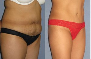 Before and after yummy tuck surgery.