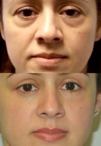 Before and two months after upper and lower blepharoplasty, left ptosis repair and a mid-face lift.