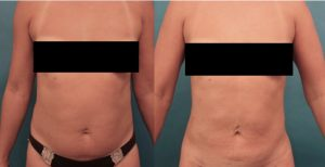 Before and six months after liposuction to the upper and lower abdomen, waist, and upper back.