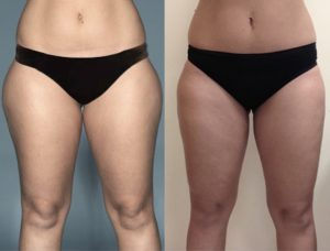 Before and one year after liposuction of the inner and outer thighs.