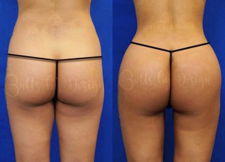 butt3