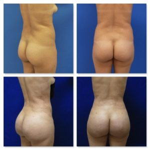 30 year-old patient before (top row) and after (bottom row) a Brazilian butt lift via fat transfer.