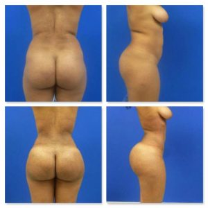 23-year-old patient before (top row) and after (bottom row) a Brazilian butt lift via fat transfer.