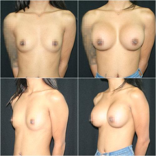 breast-aug_ba_29_ig