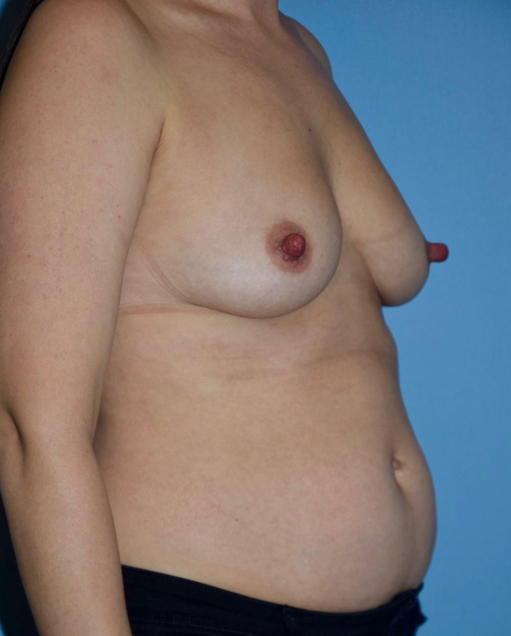 Breast_Aug_and_Lipo_pre_(002)