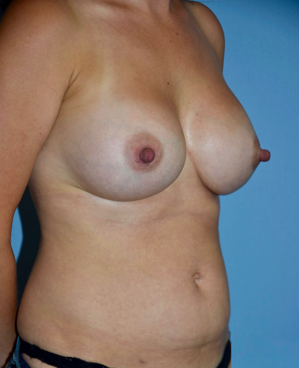 Breast_Aug_and_lipo_post_(002)