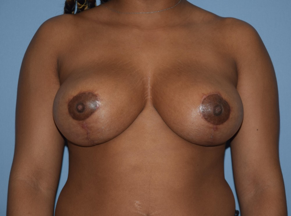 Breast_Reduction_post_(002)