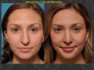 This 21-year-old suffered an injury while playing sports that resulted in a crooked nose and the inability to breathe well . Results shown are after septorhinoplasty to restore proper breathing and a straighter, uninjured appearance.