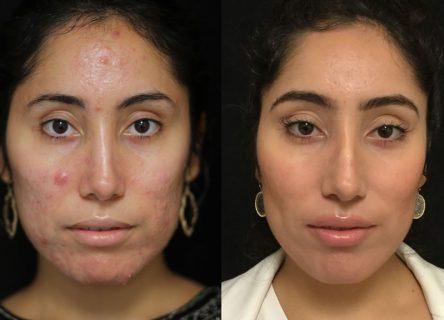23-female-accutane-3-months-FRONT