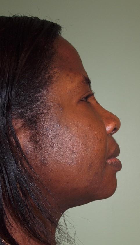 BB 2 months postop chin