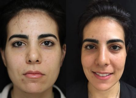 v-beam-clear-brilliant-before-after-1-gallery