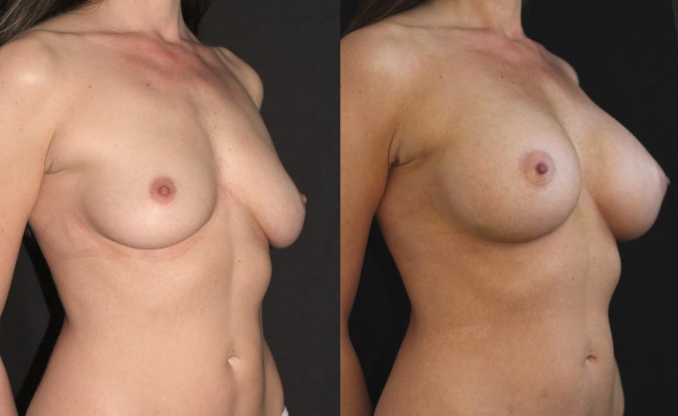 Cold-Subfascial-Breast-Augmentation-left-angle-before-after.jpg-nggid03101-ngg0dyn-0x0x100-00f0w010c010r110f110r010t010