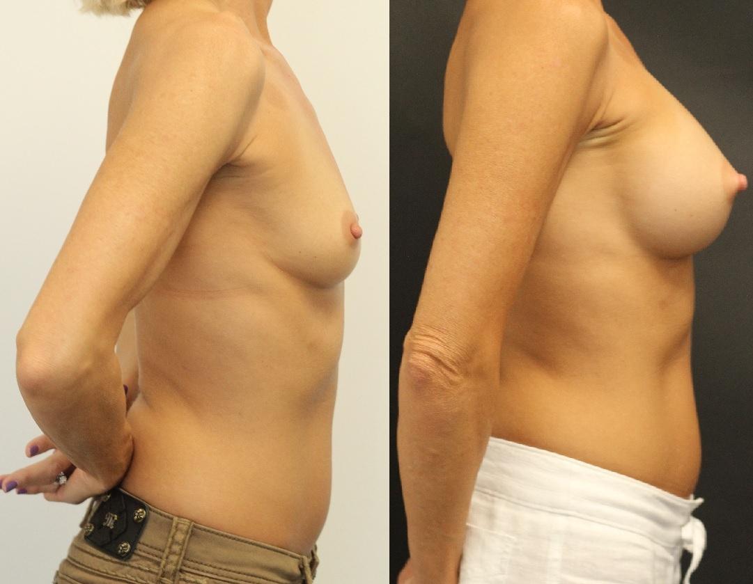 breast-augmentation-maercks-institute-miami-1.jpg-nggid03118-ngg0dyn-0x0x100-00f0w010c010r110f110r010t010