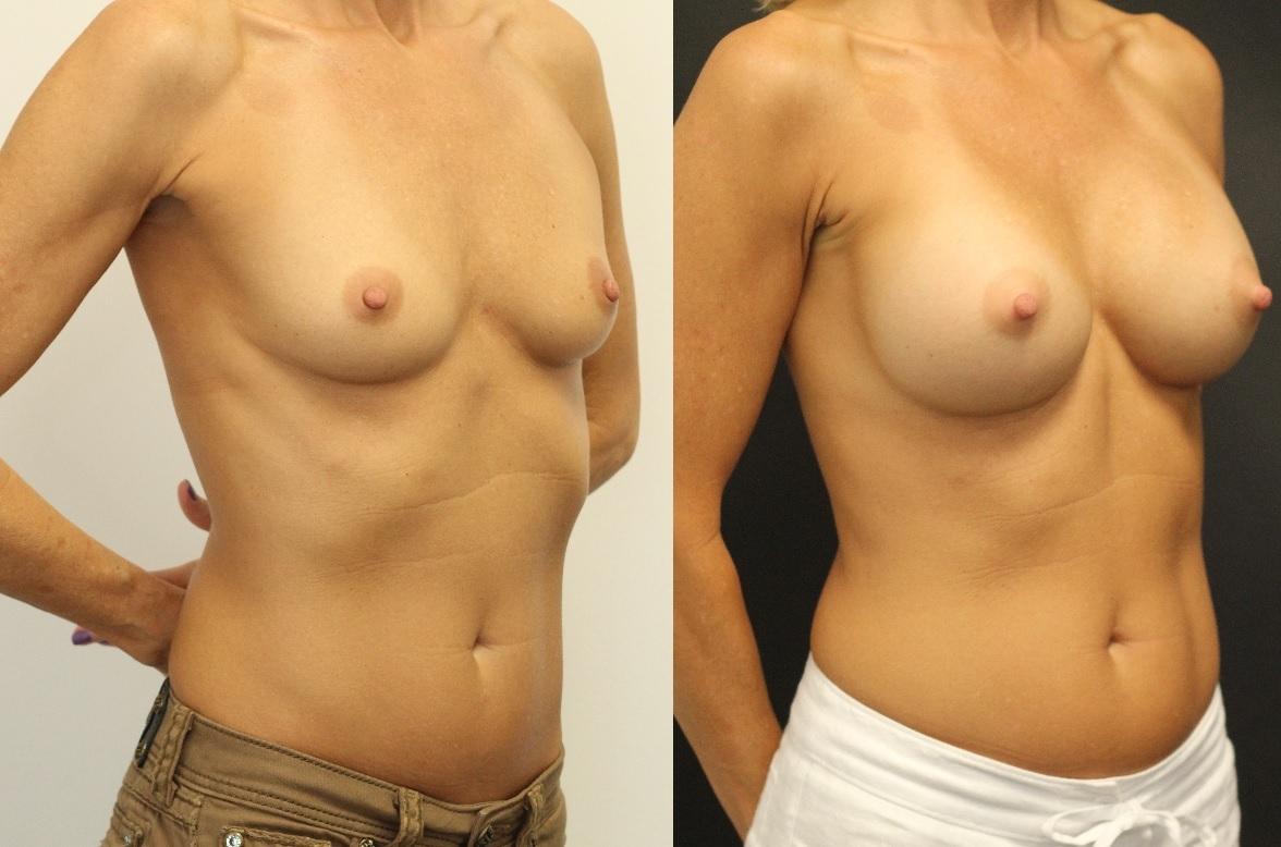 breast-augmentation-maercks-institute-miami-2.jpg-nggid03115-ngg0dyn-0x0x100-00f0w010c010r110f110r010t010