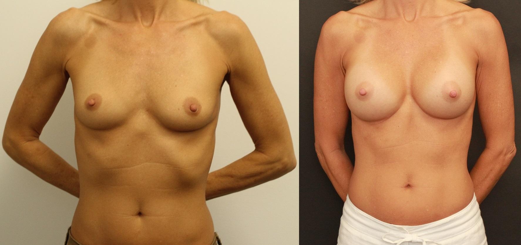 cold-subfascial-breast-augmentation-the-maercks-institute-miami.jpg-nggid03117-ngg0dyn-0x0x100-00f0w010c010r110f110r010t010