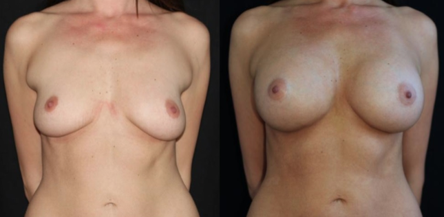 obstacles to natural looking scarless transaxillary results in breast augmentation surgery