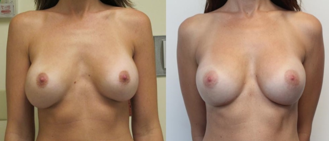 obstacles to natural looking scarless transaxillary results in breast augmentation surgerymiami