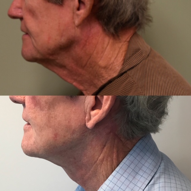 Lower Facelift and Necklift (1)