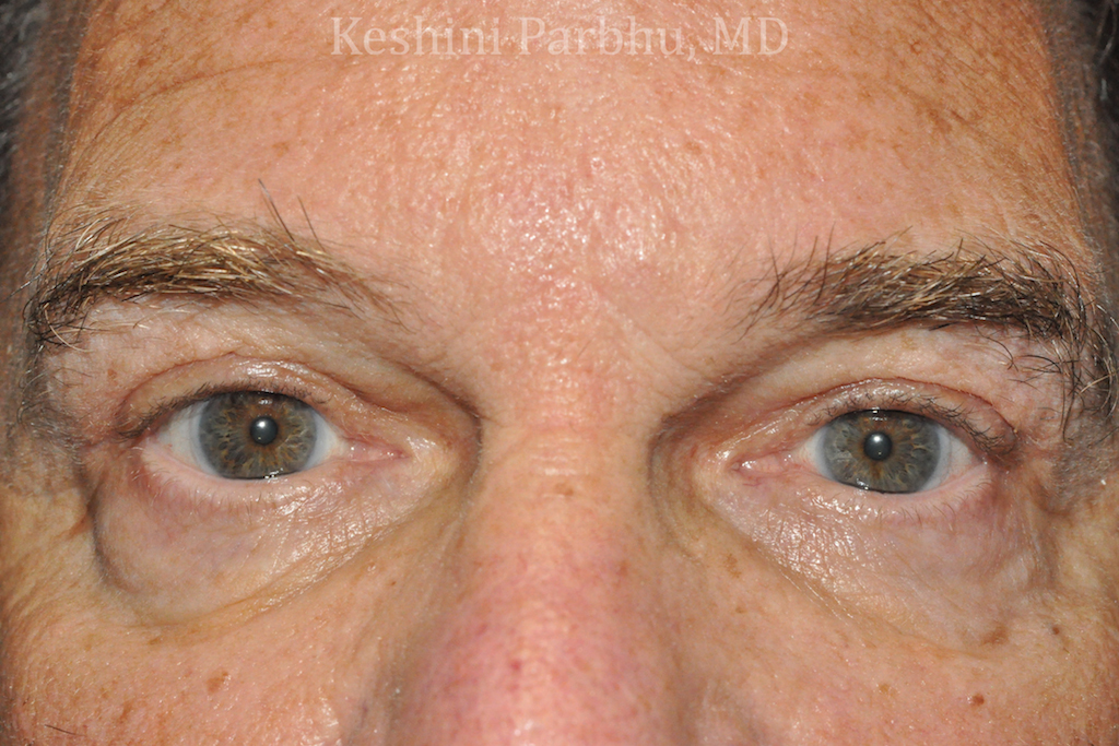 after endo and ptosis repair