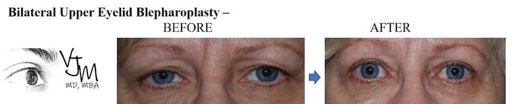 Blepharoplasty1