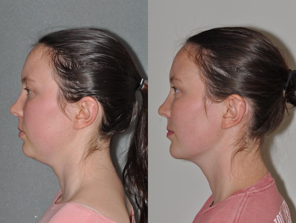 Chin Implant & Neck Lipo 1a