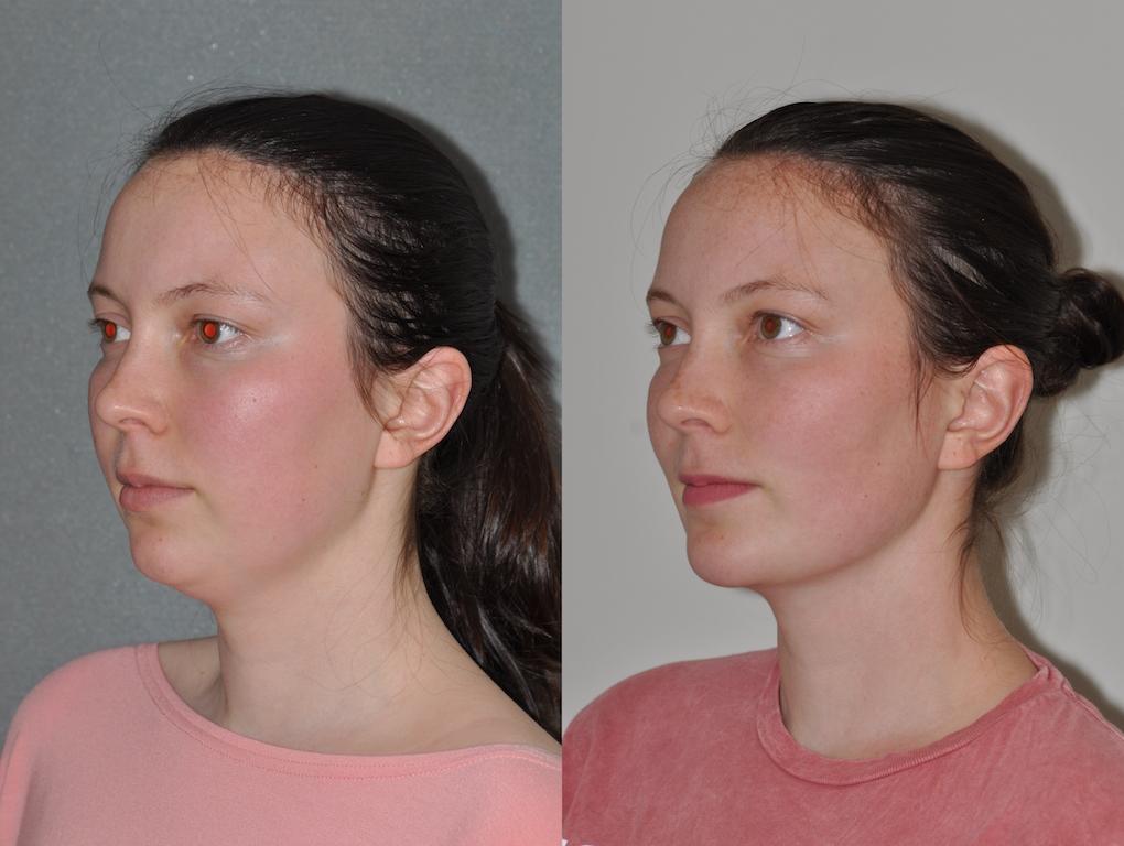 Chin Implant & Neck Lipo 1b