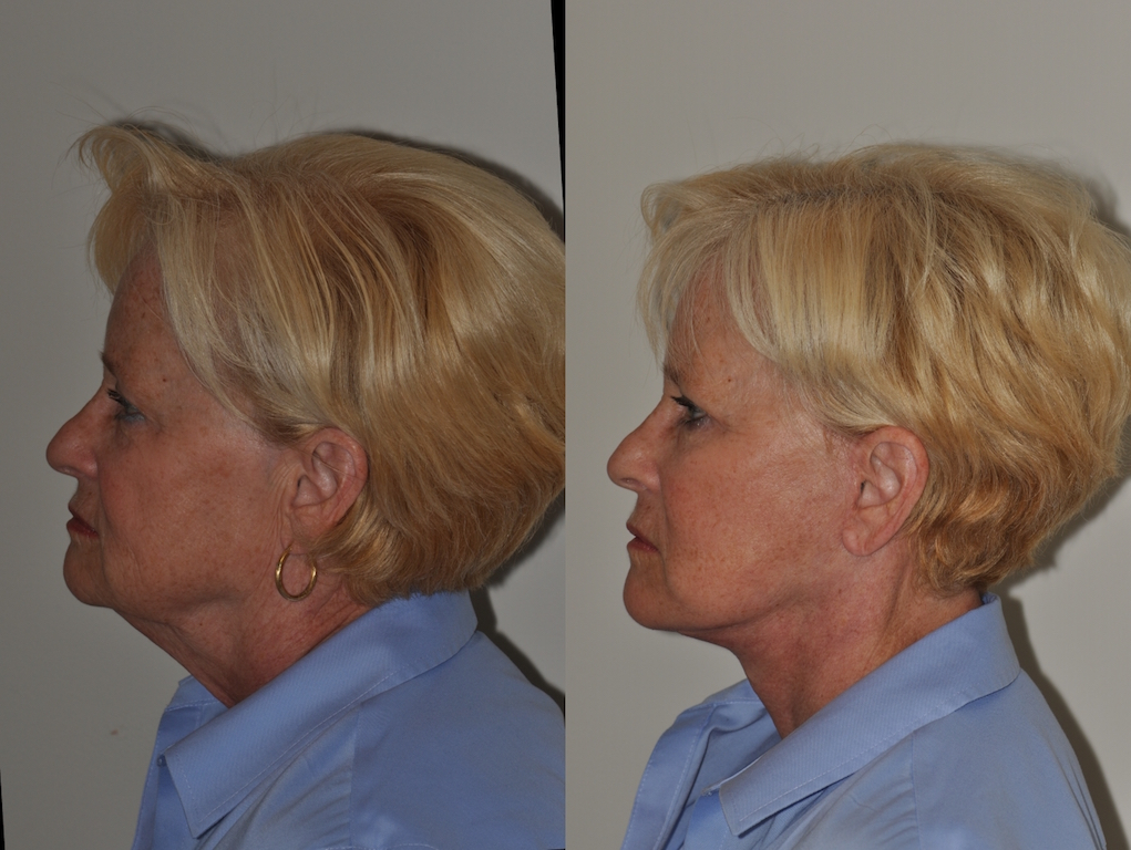 Lower face & neck lift 1